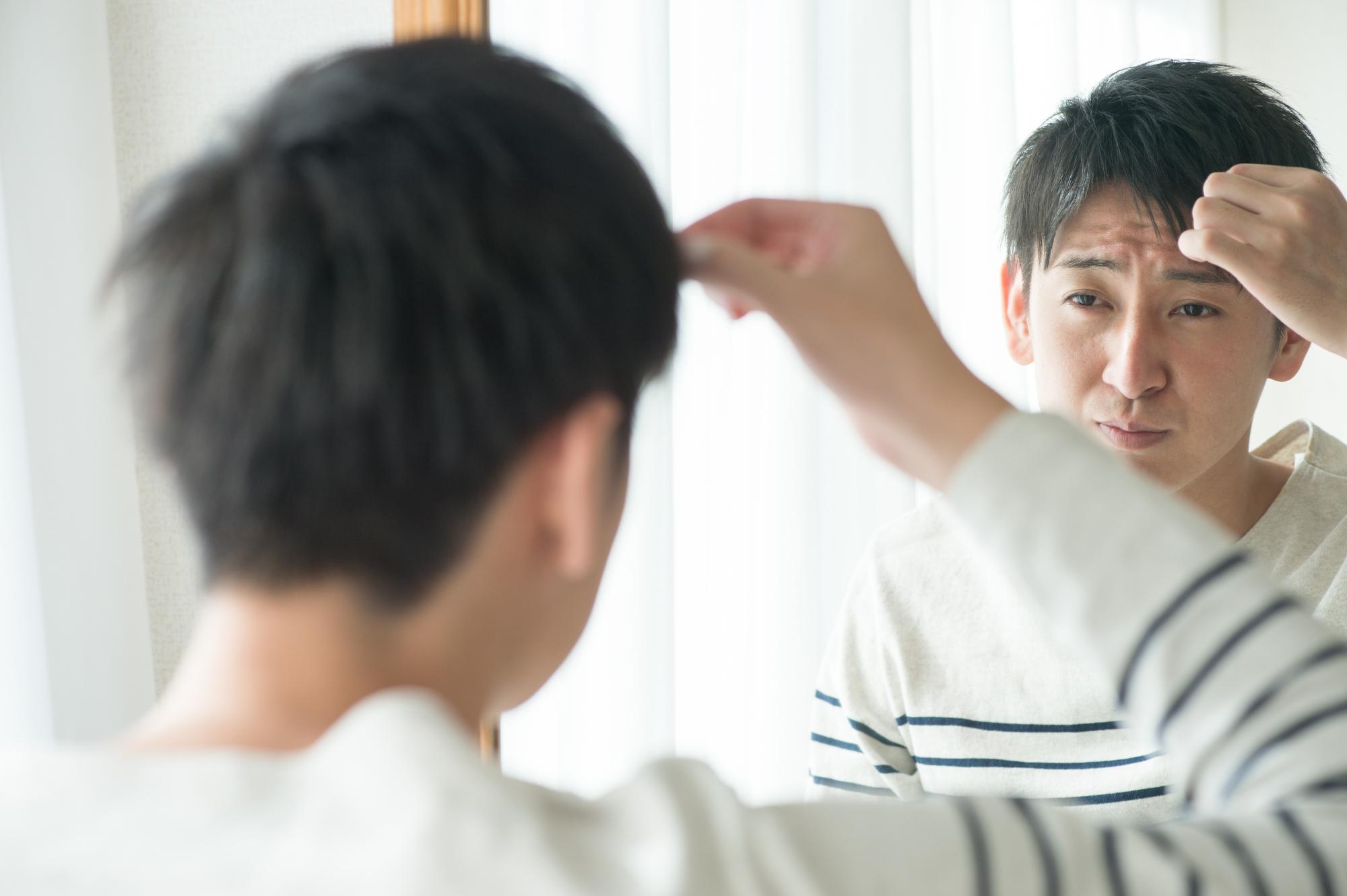 煩惱頭髮的男性