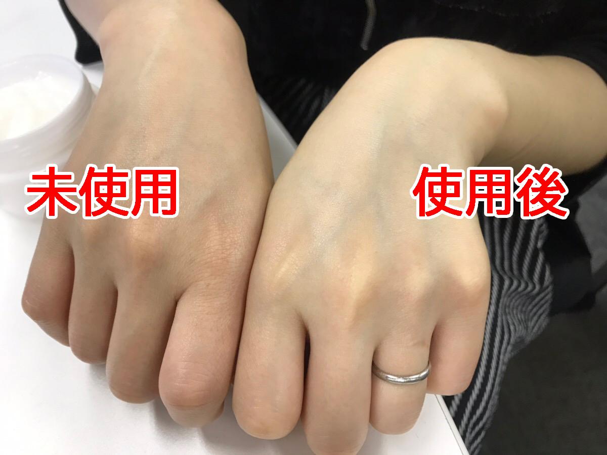 手的對比照