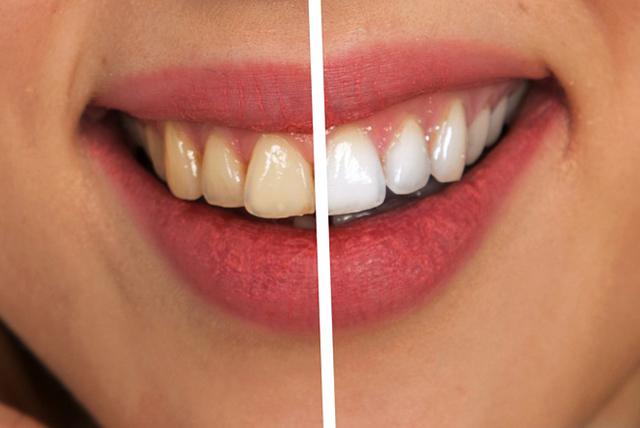牙齒的落差