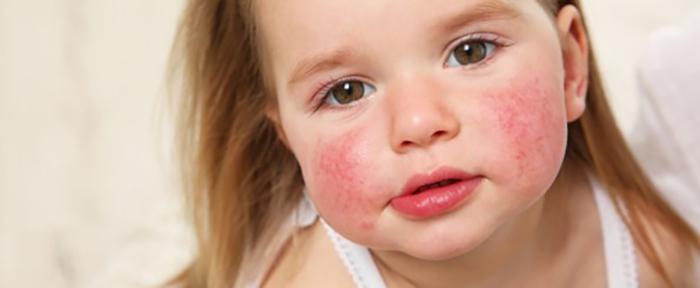 紅槽性皮膚