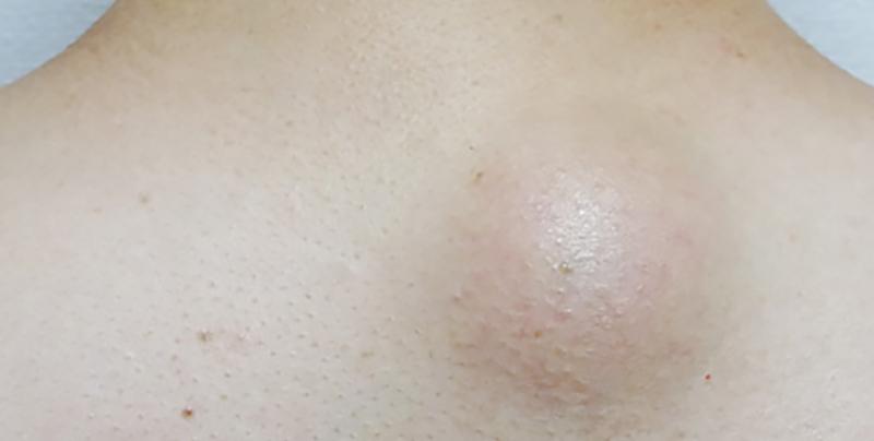 粉瘤的樣子