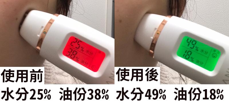 Dr.Medion碳酸保濕凝膠面膜使用前後的保濕度比較